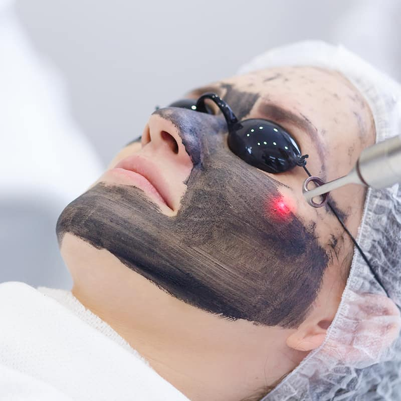 [Image: Carbon-Laser-Peel-Treatment.jpg]
